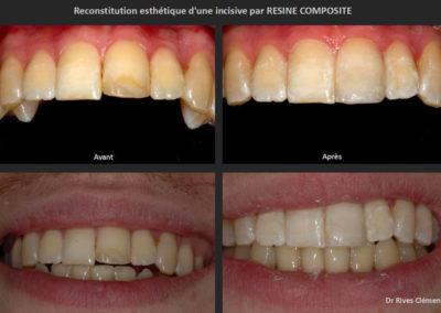 reconstitution incisive par résine composite