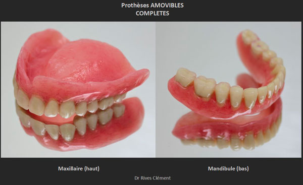 Protheses amovibles completes
