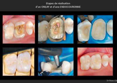 Les différentes étapes de la réalisation d'un onlay et d'une endo-couronne